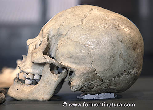 Cráneo del esqueleto de la imagen anterior.